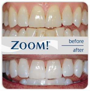 zoom-before-after